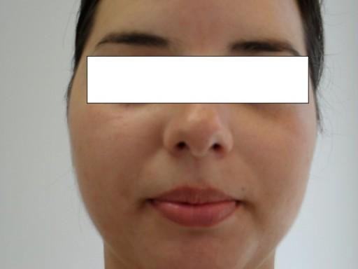 pacient_M_G_rezultat
