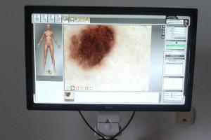 VideoDermatoscopie 03